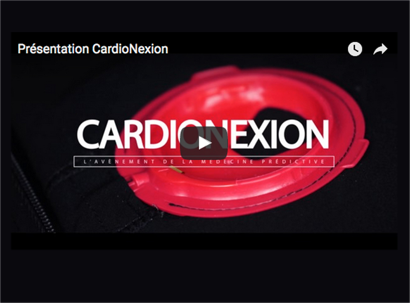 image-video-youtube-cardionexion-201702