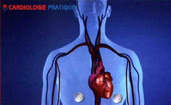 cardiologie-pratique-cardionexion-sept-2017